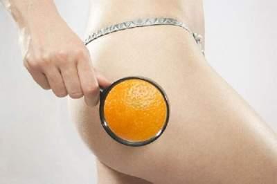 Эксперты назвали продукты с антицеллюлитными свойствами